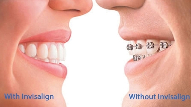 With Invisalign, Without Invisalign